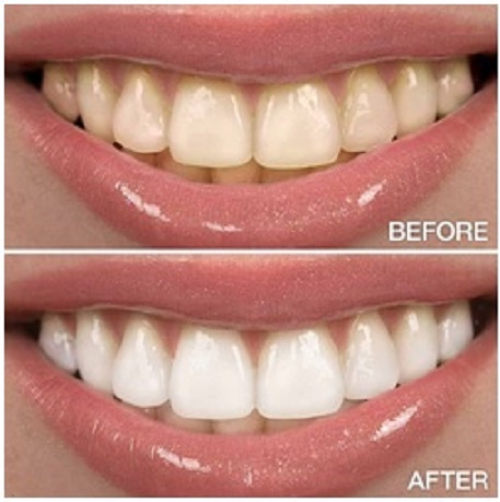 Shades of Teeth before and after